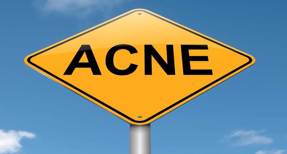 acne sign